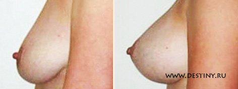 obvislie-zhenskie-grudi-pizda-foto-na-ginekologicheskom-kresle